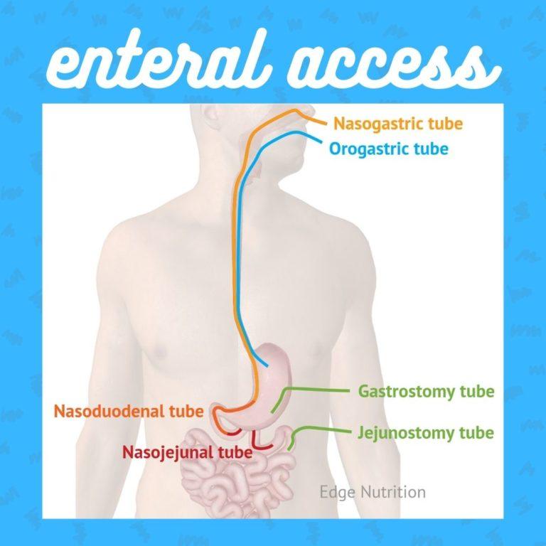 EN access